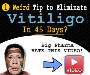 best vitiligo treatment